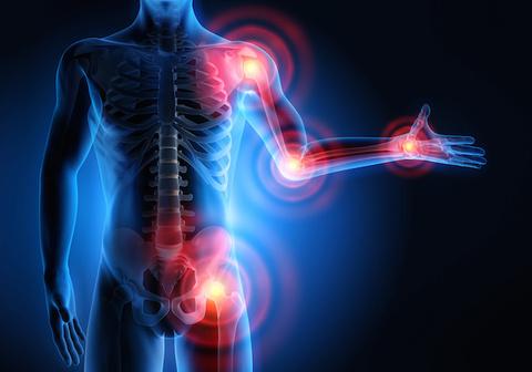 Dolori alle articolazioni: prevenzione e trattamento